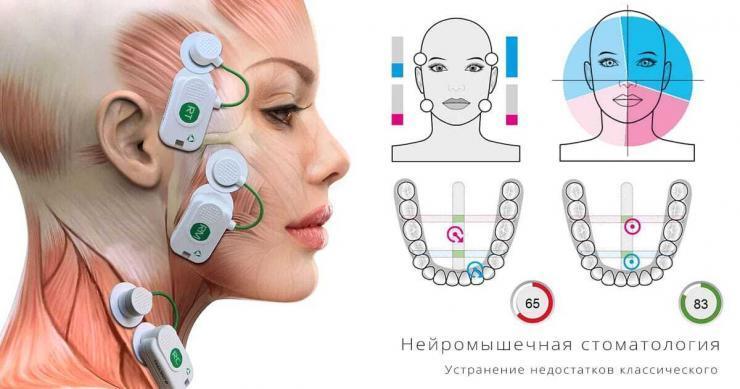 Нейромышечная стоматология