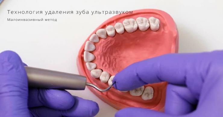 удаление зуба ультразвуком москва