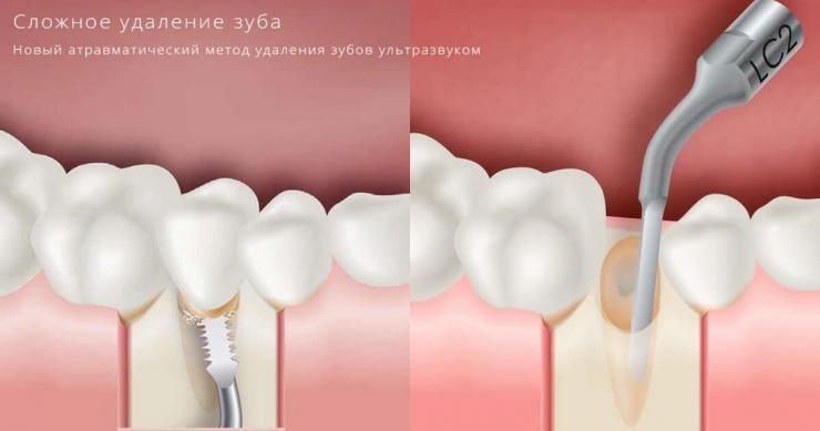 сложное удаление зубов москва
