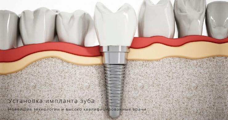 установка импланта зуба