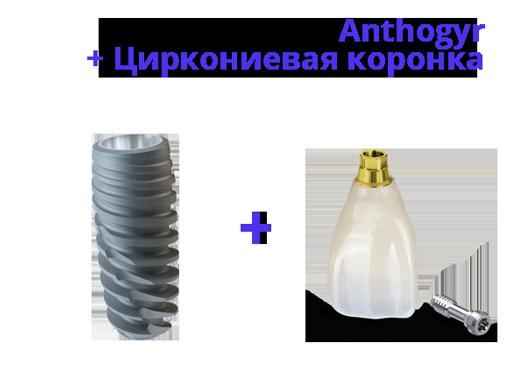 Акция на импланты Anthogyr с циркониевой коронкой